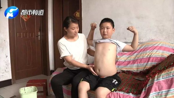 Boy Gains Weight to Save His Father's Life